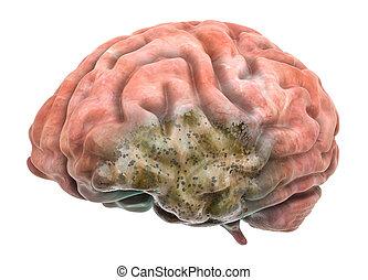 脳, concept., 3d, 病気, レンダリング
