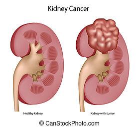 腎臓, がん
