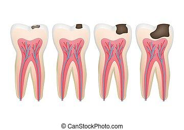腐食, 映像, 歯医者の, 歯, ベクトル, 説教壇, カリエス, tooth., 問題, 根, 医療の手順
