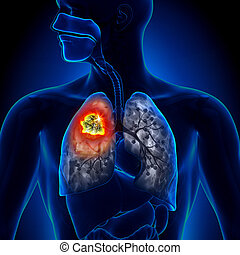 腫瘍, 肺, -, 細部, がん