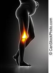 膝關節, 問題, 在, 懷孕