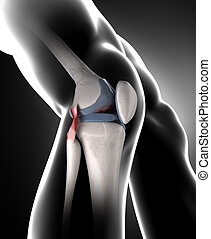 膝, ∥で∥, arthrisis