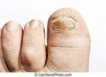 菌類, 爪, 伝染