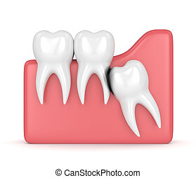 虫歯, 3d, 浸食, render, 知恵