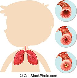 解剖学, シルエット, 肺, 男の子