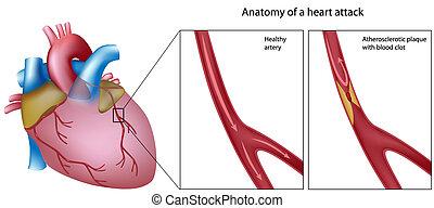 解剖學, 心臟病發作