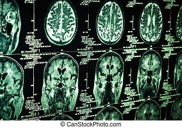 走り読みしなさい, 非常に, 脳, 緑, 人間, シャープ