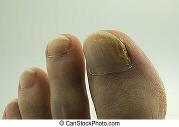 足の爪, 菌類
