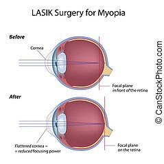 近視, 外科, 眼睛, eps8, lasik