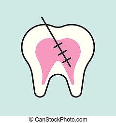 運河, アウトライン, endodontic, 歯医者の, 関係した, 歯, 待遇, 待遇, アイコン, 根, ∥あるいは∥, 満たされた