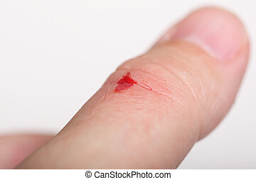 酒精, 抓痕, 手, 消毒, 健康, 切割