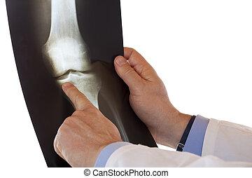 醫學的醫生, 指, 由于, 手指, 在, 射線照片, ......的, 膝關節, bone., 被隔离, 在懷特上,...