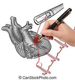 醫生, 圖畫, 心臟病發作, 以及, 心, 打, cardiogram