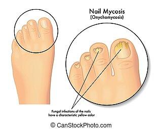 釘, mycosis