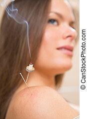 針, 熱, 女, moxibustion, acupunture
