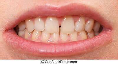 ∥間に∥, 門歯, 上部, diastema