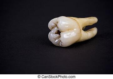 陶瓷, 人工, 牙齒