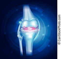 青, 膝, 骨関節炎, 抽象的, 背景
