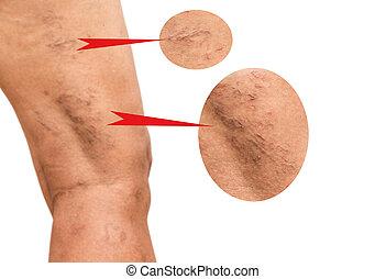 静脈, 足, 中年, varicose, women.