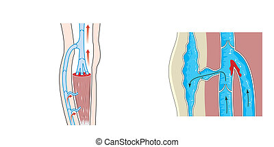 静脈, thrombosis, 海原
