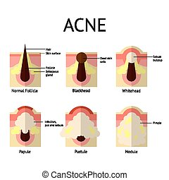 類型, ......的, 粉刺, pimples., 健康, 皮膚, whiteheads, 以及,...