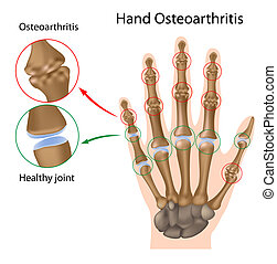 骨関節炎, の, ∥, 手, eps8