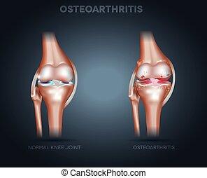 骨關節炎, 以及, 正常, 聯接, 解剖學