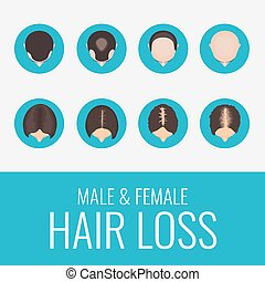 髪損失, セット, マレ, 女性