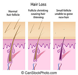髪損失, プロセス, eps8