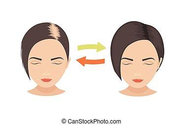 髪損失, 女性