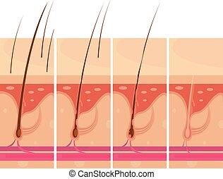 髪損失, 概念, 皮膚
