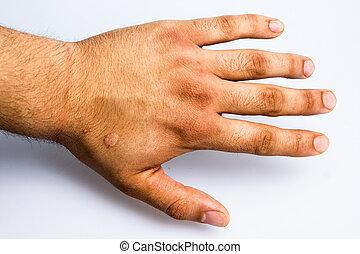 남자 손, 와, 흉터, 에서, 담배, 화상
