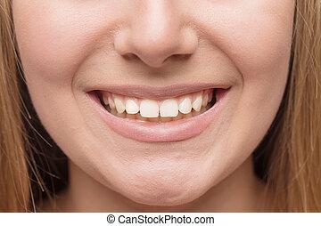 미소, 와, 백색, 건강한, teeth.