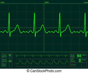 심장, 스크린, 모니터 구실을 하다