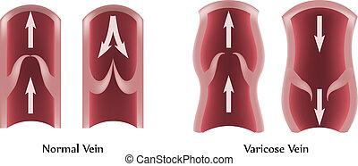정맥, varicose