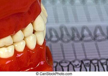 치과 공구, 와..., 장비, 통하고 있는, 치음의, 도표