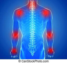 - , αρθρώσεις , ανατομία , ανθρώπινος , βλάβη , γενική ιδέα