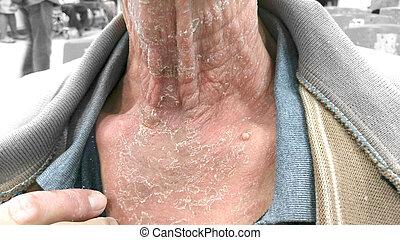 hongos cuello