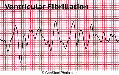 -, ritmo, corazón, mortal, ventricular, fibrilación