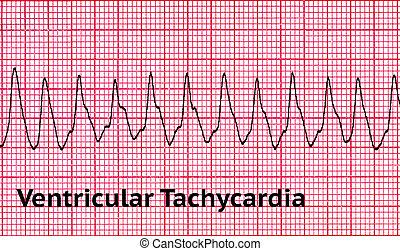 -, ritmo, corazón, mortal, ventricular, taquicardia