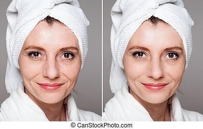 -, tratamiento, feliz, before/after, rejuvenecimiento, belleza, piel, tiros, elevación, anti viejo, apretar, cuidado, después, facial, mujer, procedimientos