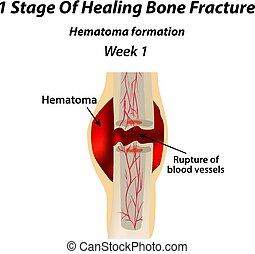 1 Stage Of Healing Bone Fracture. Formation of callus. The bone fracture. Infographics. Vector illustration on isolated background.