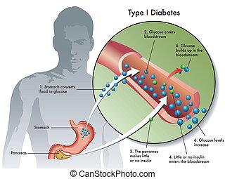 1, tipo, diabetes