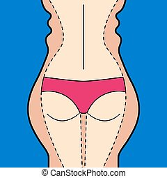 1Plastic surgery - Liposuction. Hips, thighs, buttocks....