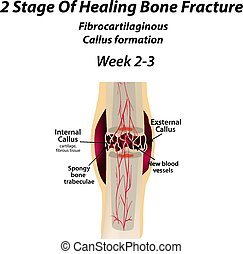 2 Stage Of Healing Bone Fracture. Formation of callus. The bone fracture. Infographics. Vector illustration on isolated background.