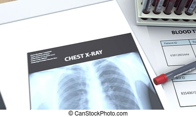 The doctor exam two x-rays of the patient's lungs, the results of a blood test and concludes that the test is positive for coronavirus. The images show pneumonia and there are virus in the blood.