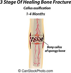 3 Stage Of Healing Bone Fracture. callus ossification. The bone fracture. Infographics. Vector illustration on isolated background.