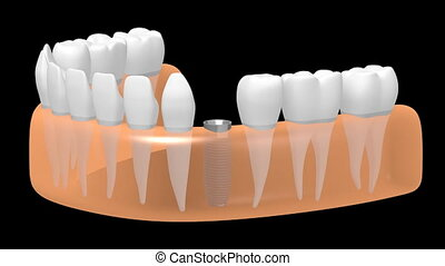 3D dental implant/ tooth implant animation - on black...