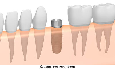 3D dental implant/ tooth implant animation - on white background.