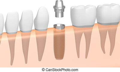 3D dental implant/ tooth implant animation - on white...
